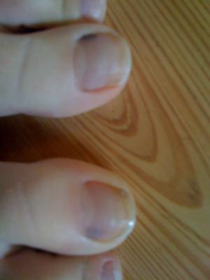 Unexplained Bruising On Big Toes